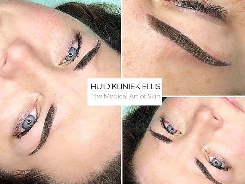 HuidKliniek Ellis